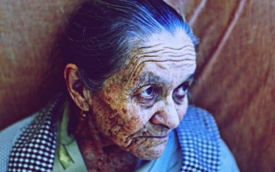 End of Life Skin Changes: What to Expect and How to Provide Comfort